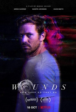 Wounds (2019) Hindi Dubbed